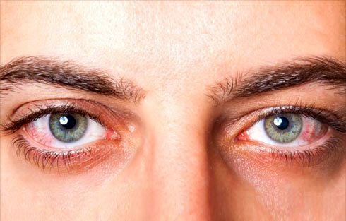 Eye Allergies? Say goodbye to itchy eyes with these tips!