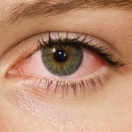 The Basics of Pink Eye