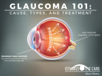 Glaucoma 101: Eyes Under Pressure