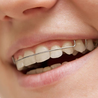 Retaining Your Retainers