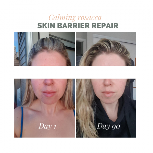 Skin barrier repair to calm rosacea before and after