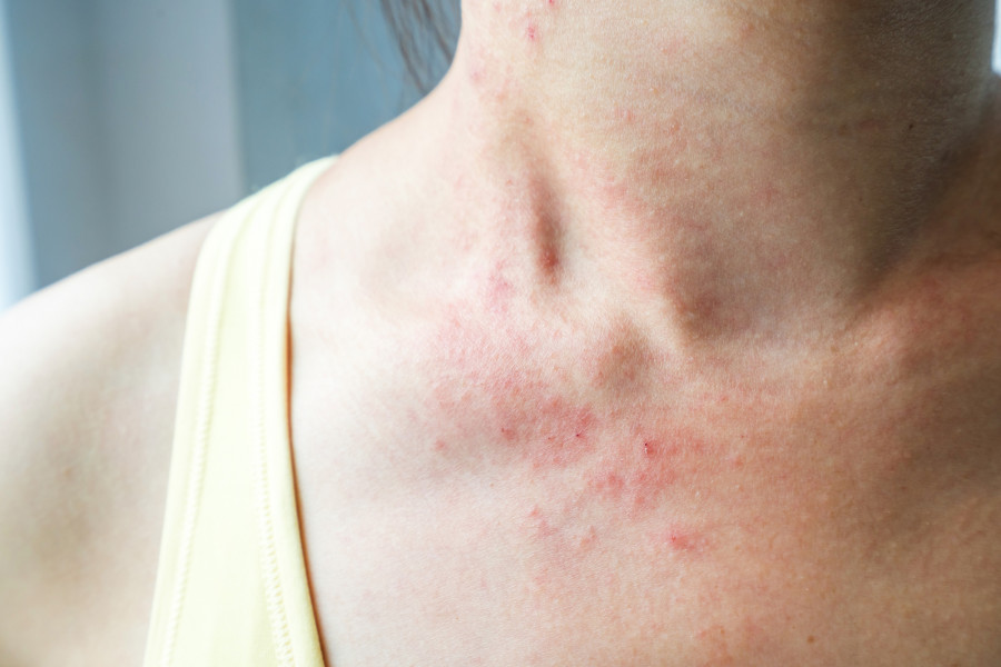 Eczema flare up without adjusting fall skin care routine