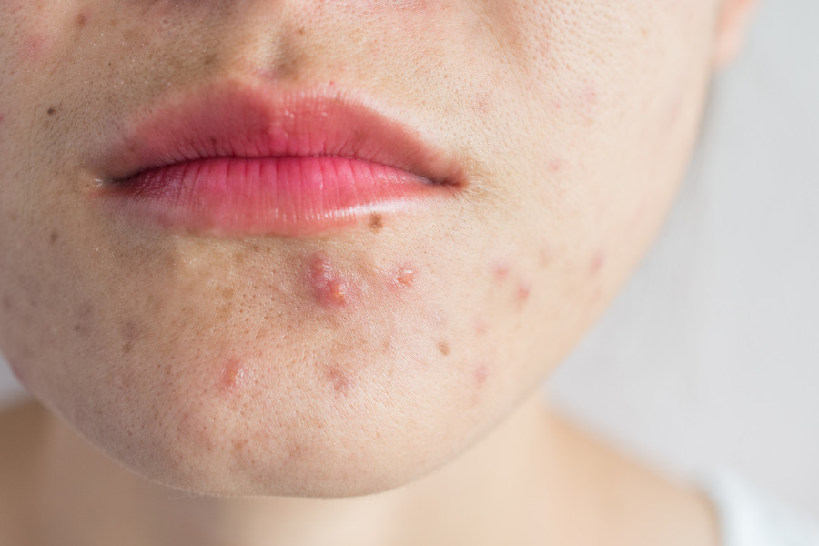 Hormonal acne on chin
