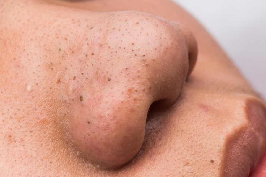The best at-home blackhead removal technique