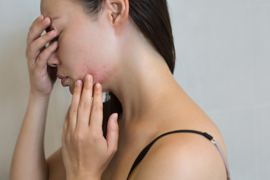 How to prevent hormonal acne with cycle syncing