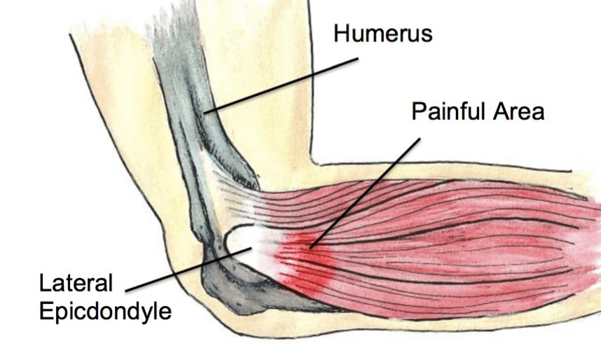 tennis elbow injury xray