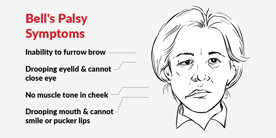 bell's palsy symptoms, facial paralysis, EMS Unit, electrical stimulation, head injuries