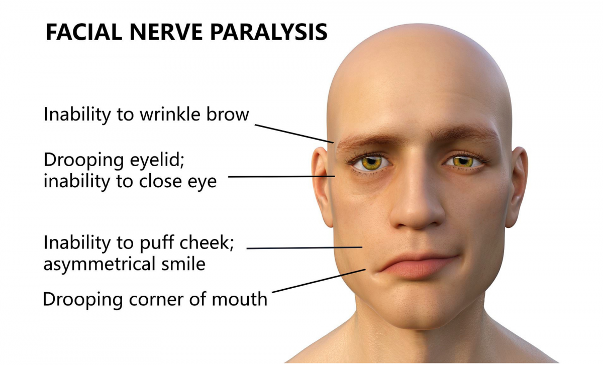 EMS Unit for Bell's Palsy