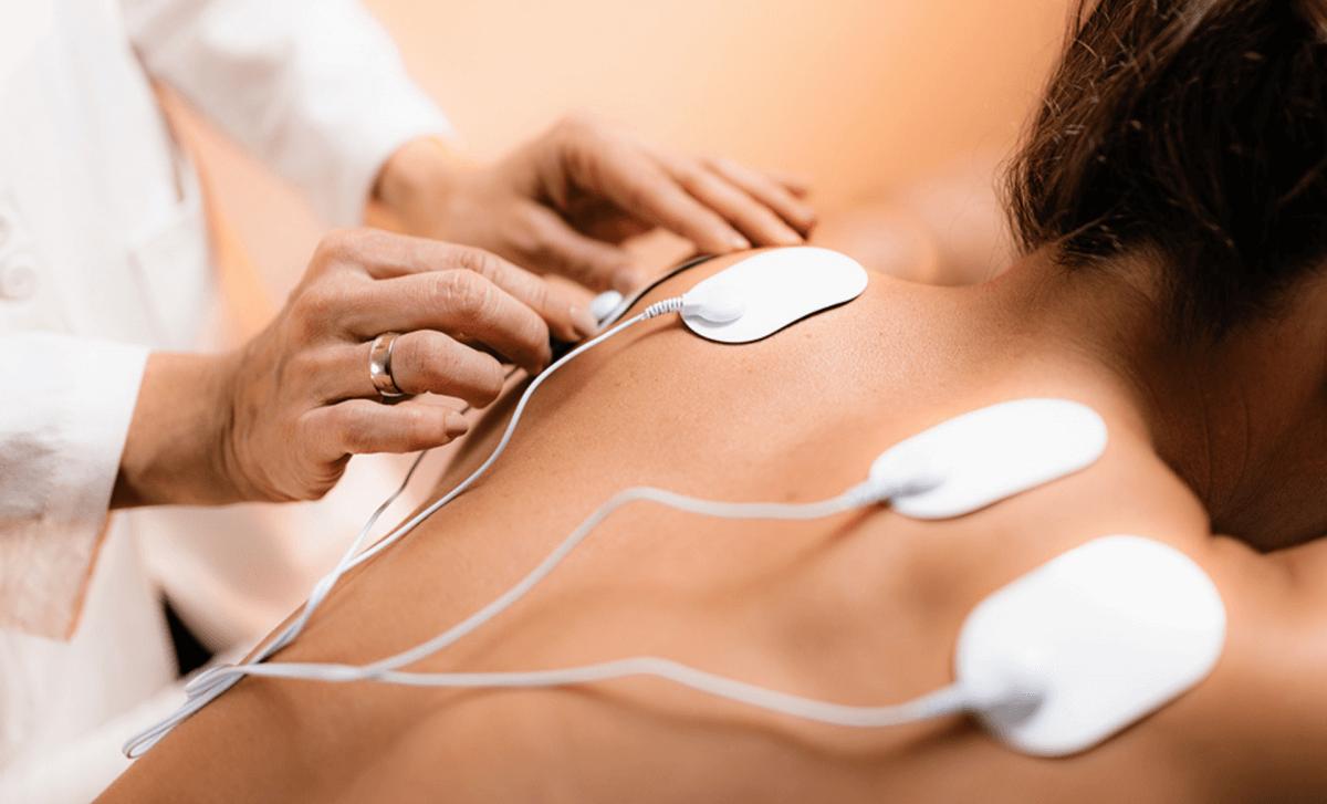 Does Electrical Stimulation Help Nerve Damage?