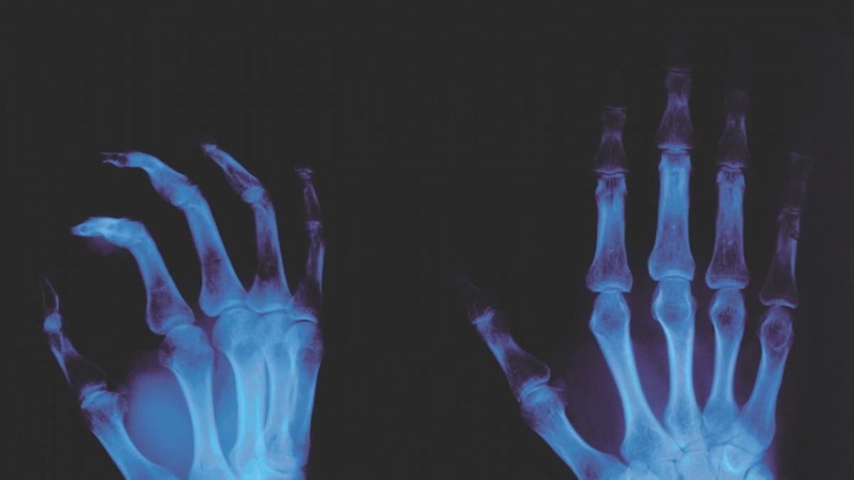 Ask Trevor CHT: Do X-rays show if you have arthritis?
