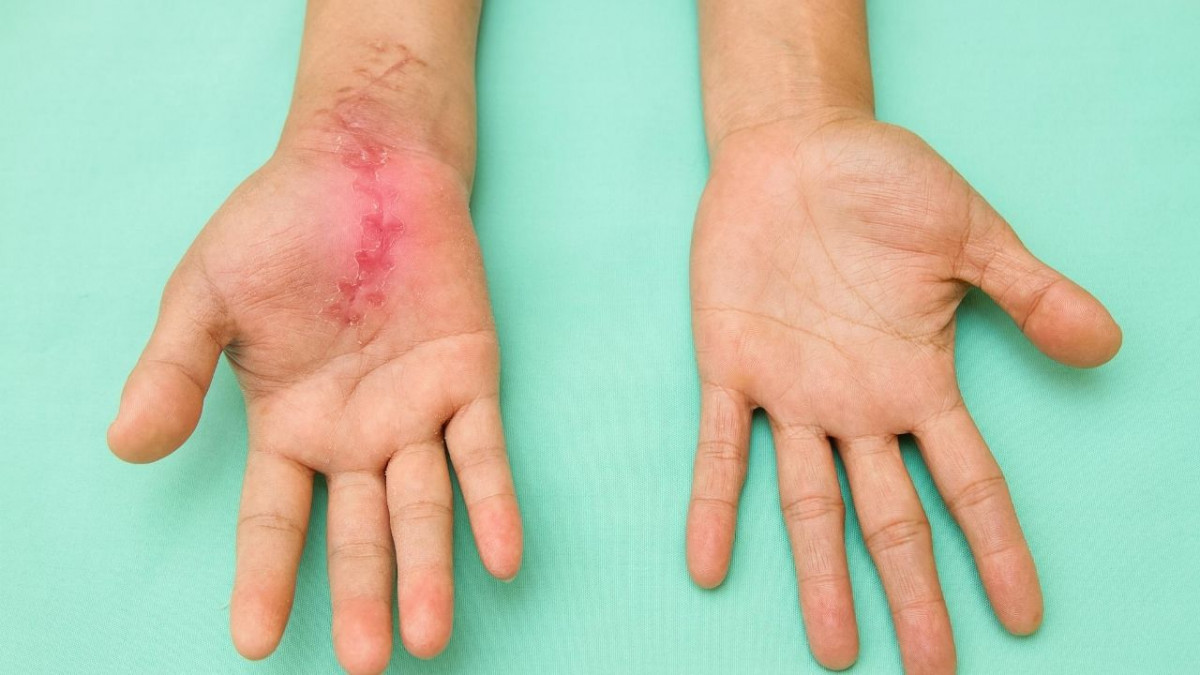 Ask Trevor CHT: Thumb pain after carpal tunnel surgery