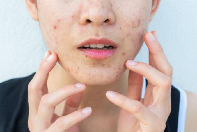 masks skin care
