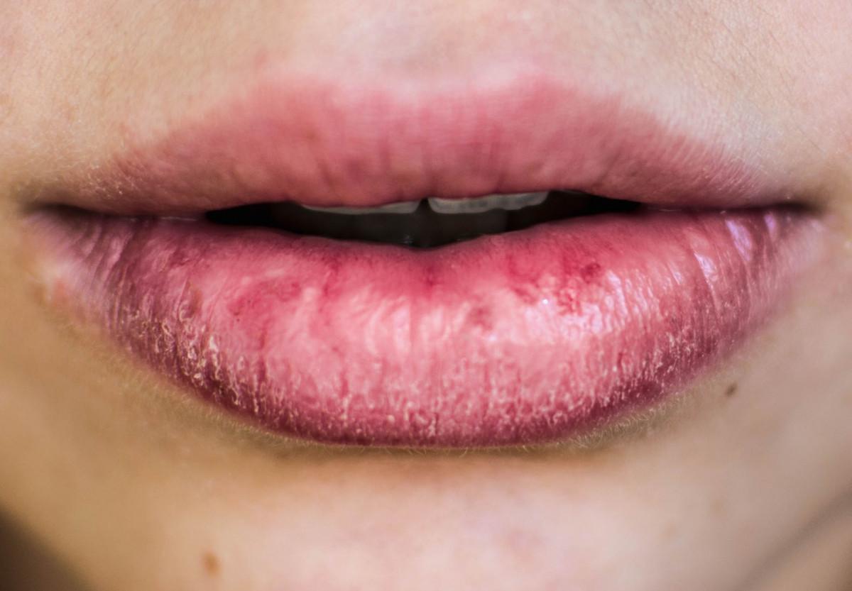 what a lip mask chapped lips