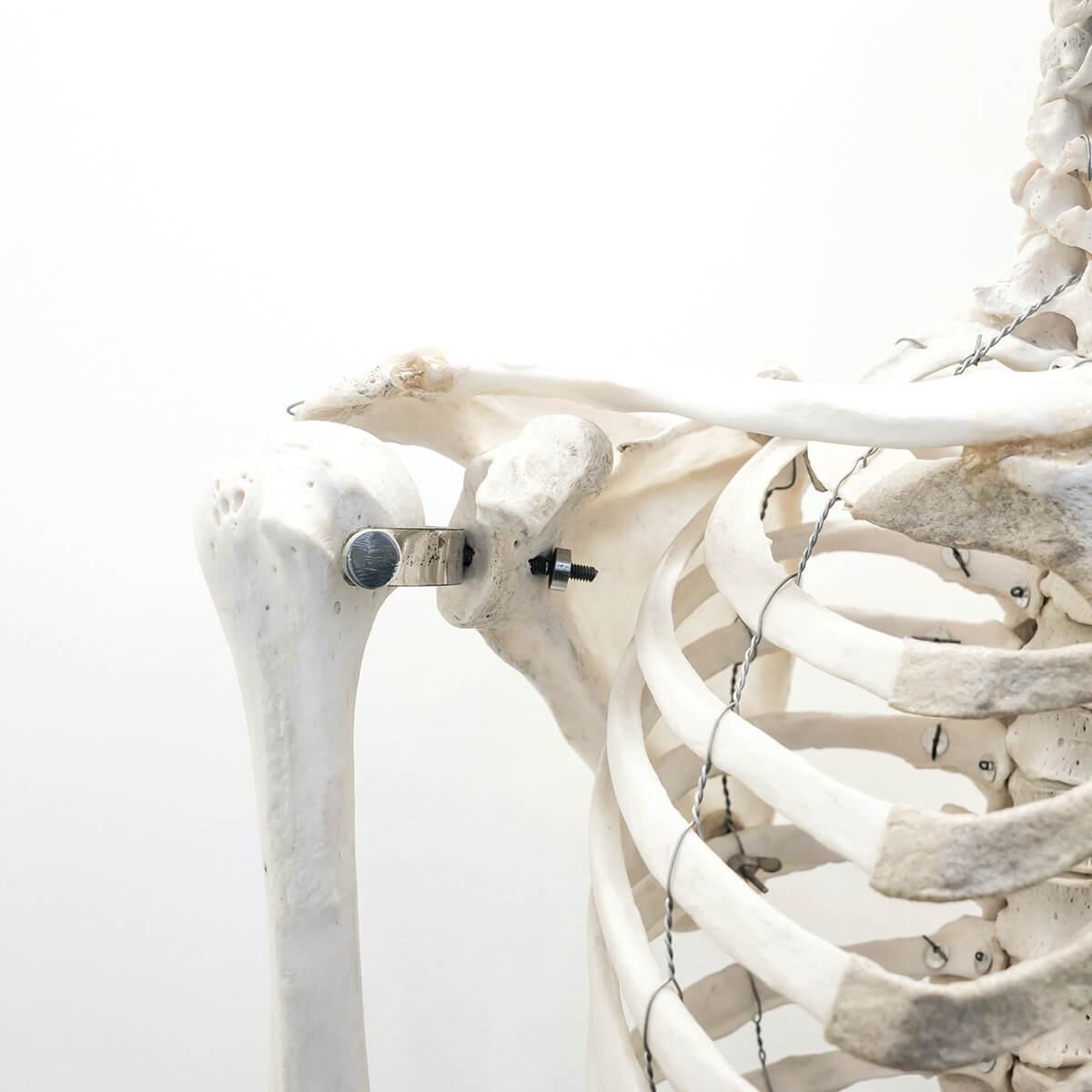 Calcium Deficiency for Bariatric Surgery Patients