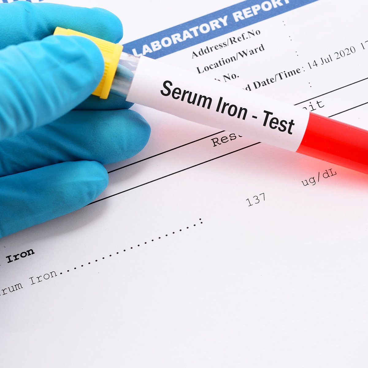Iron Deficiency after Bariatric Surgery