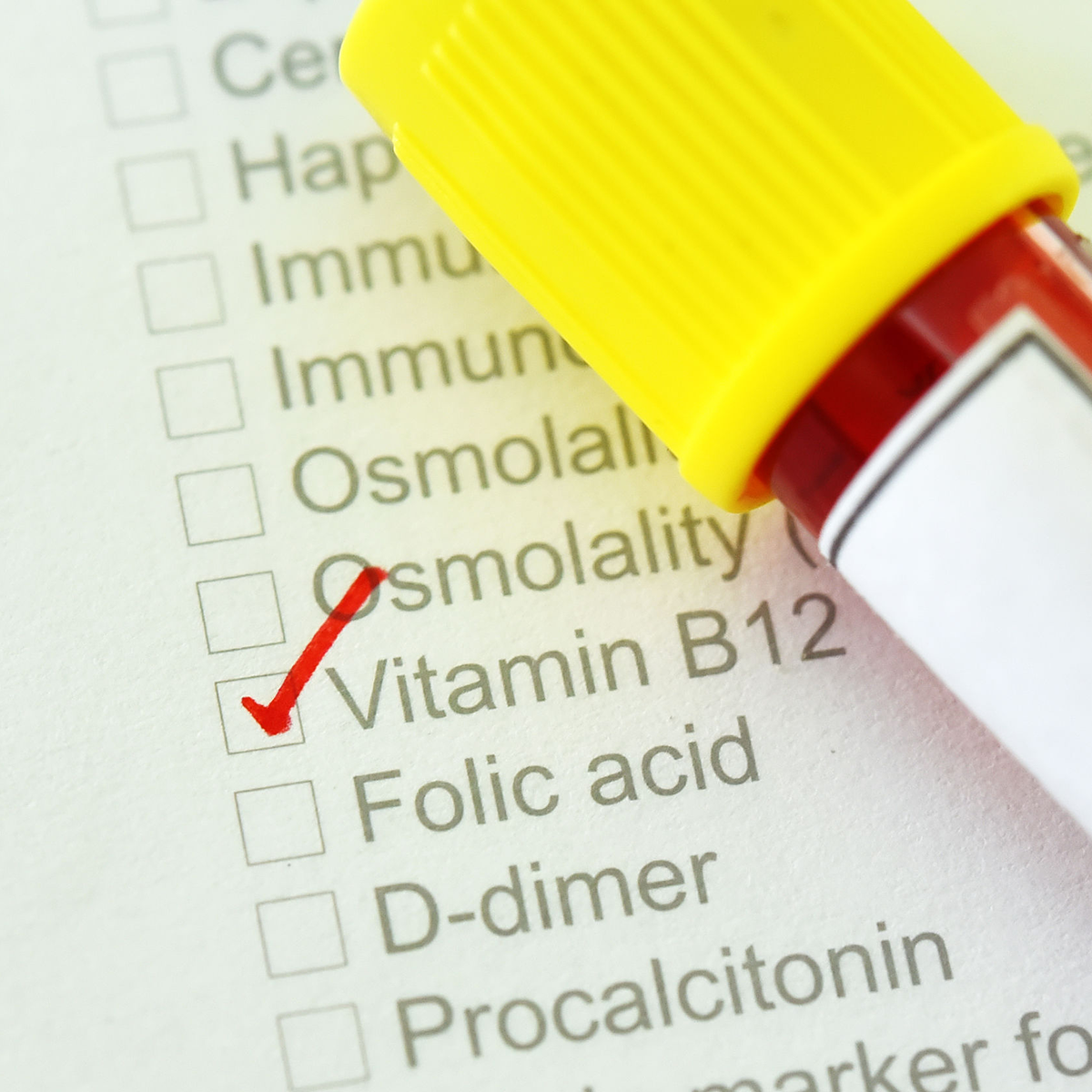 Image of checklist showing Vitamin B12 needed