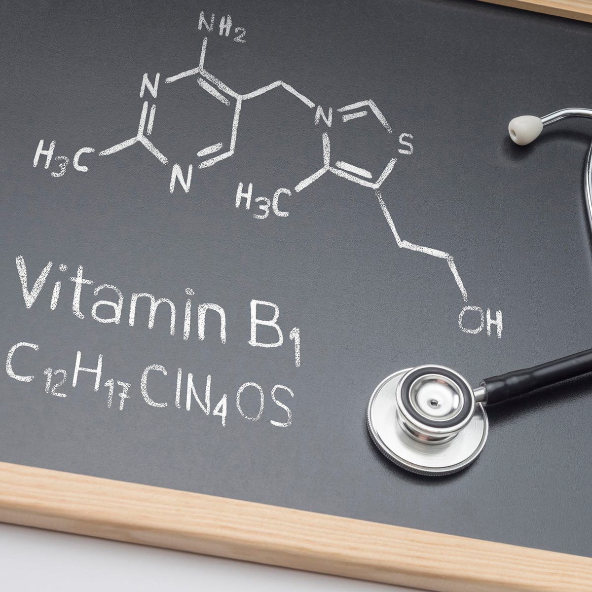 Thiamin (Vitamin B1) Deficiency Before and After Bariatric Surgery