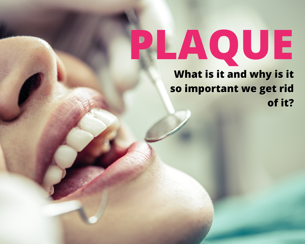 Everything You Need To Know About Plaque
