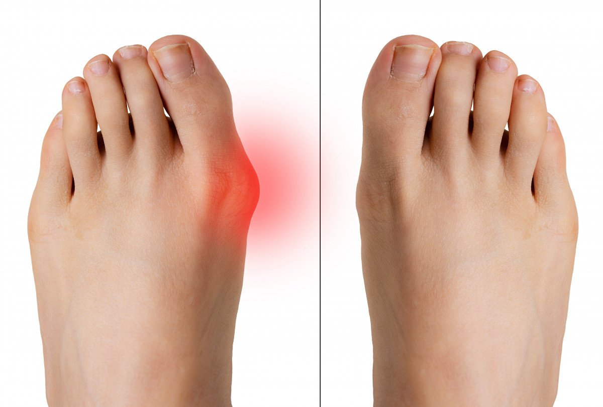 Bunions: Causes, Symptoms, Orthotics & Shoes