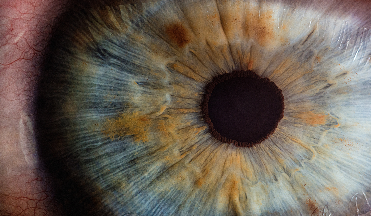Are You Getting Enough Lutein and Zeaxanthin for Eye Health?