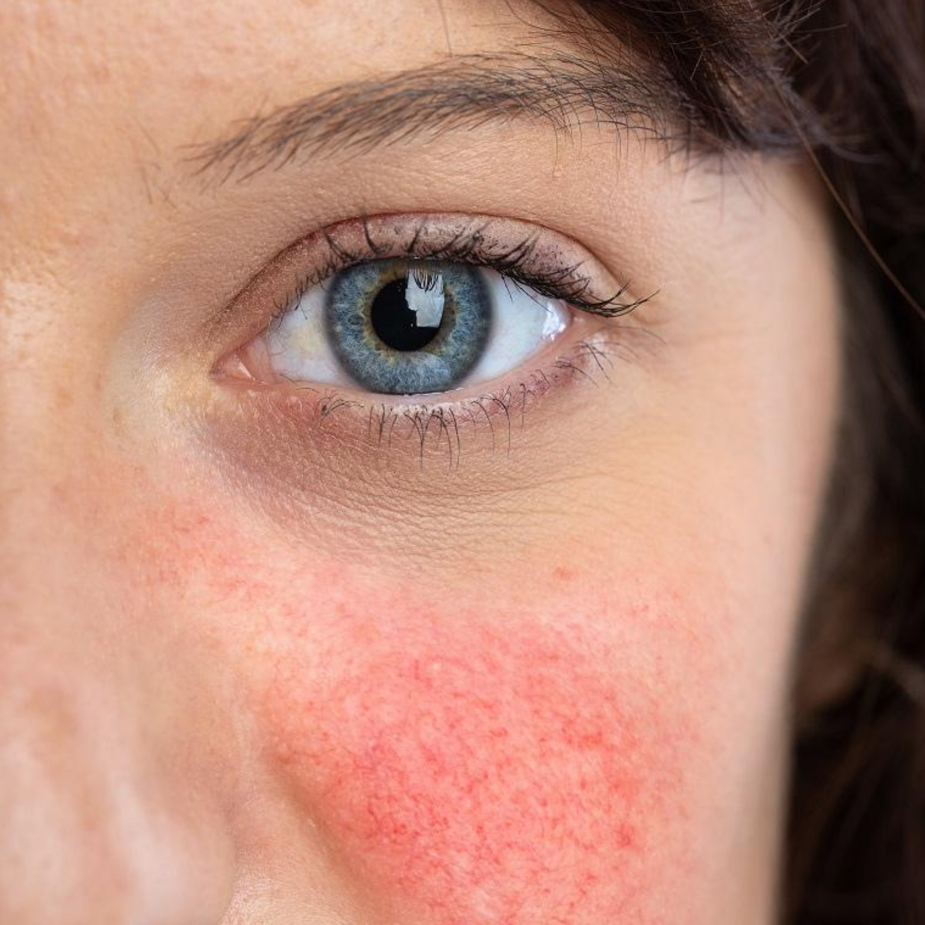 How To Help Manage Rosacea: 6 Superb Skincare Tips
