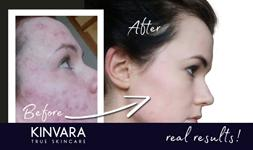 True Skin Story with Alison Ivers