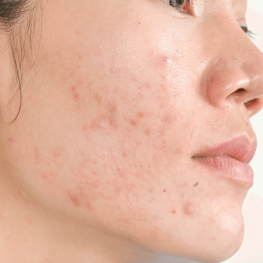 Adult Acne Part 1: The link with nutrition