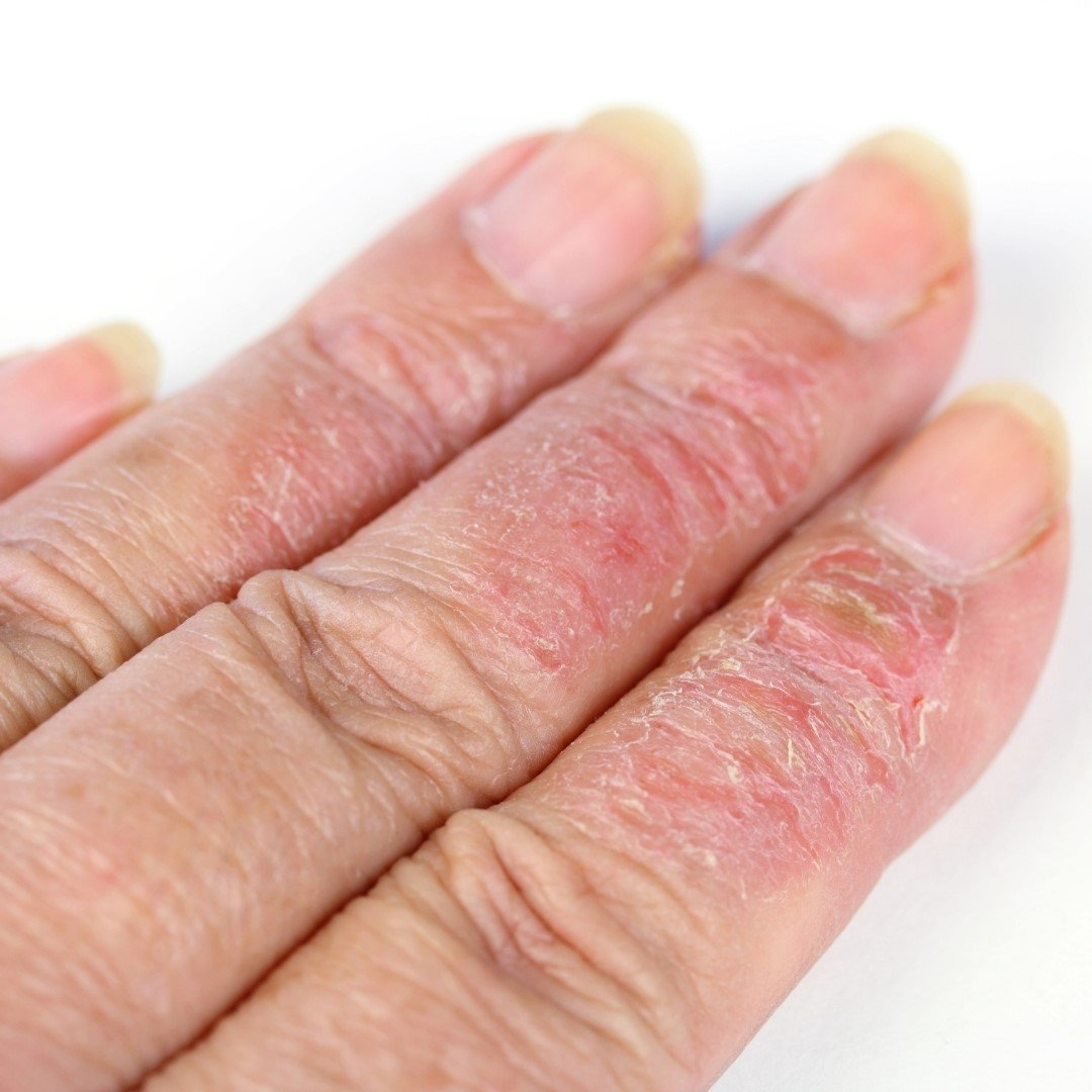 What is hand eczema and how to manage it effectively?