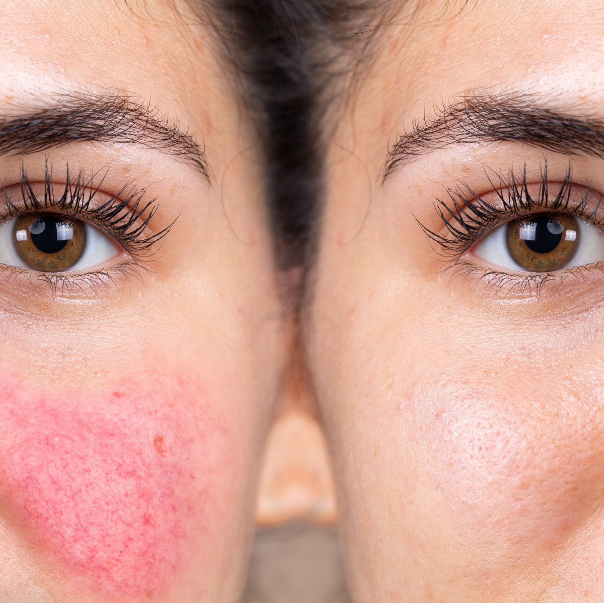 A helpful guide on how to tackle rosacea nutritionally