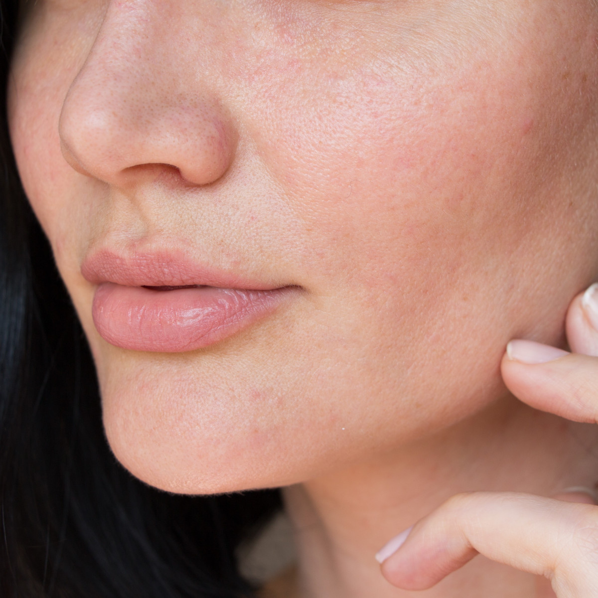 Dry skin vs Dehydrated skin: how to recognise the difference