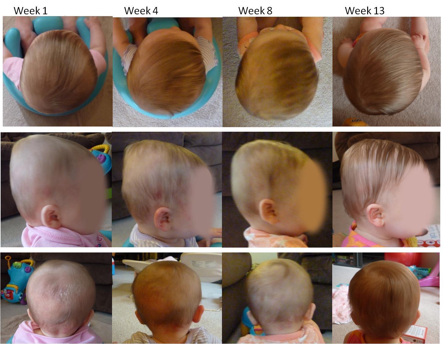 Înțelege ce este plagiocefalia sau sindromul capului turtit la bebeluși