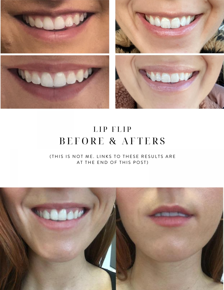 Lip Flip Before and After Results