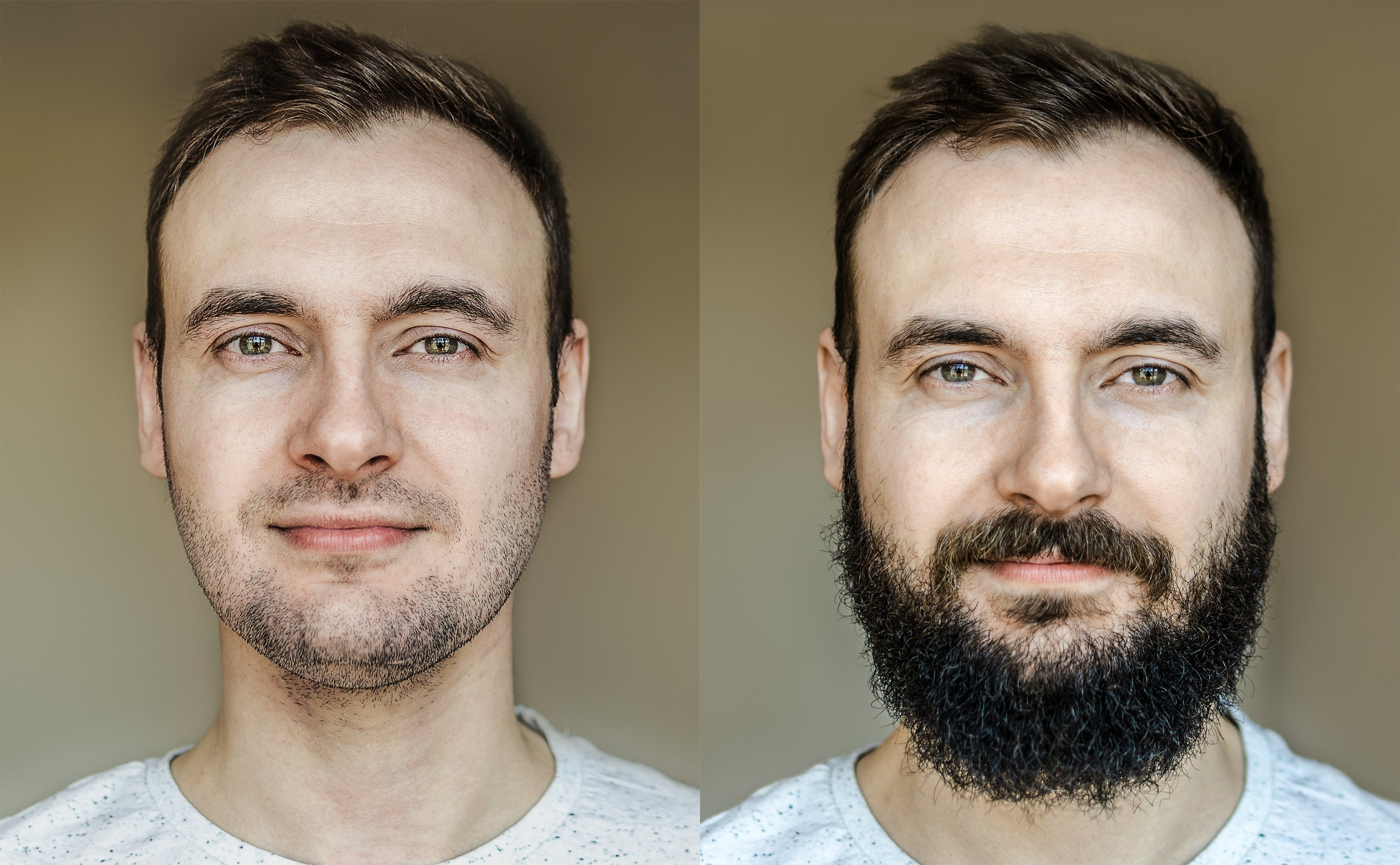 The Best Beard Shapes for Weak Jawline or Double Chin