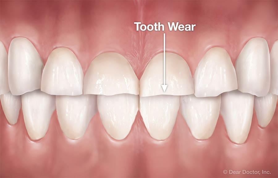 Worn Down Teeth?  Causes and Treatment