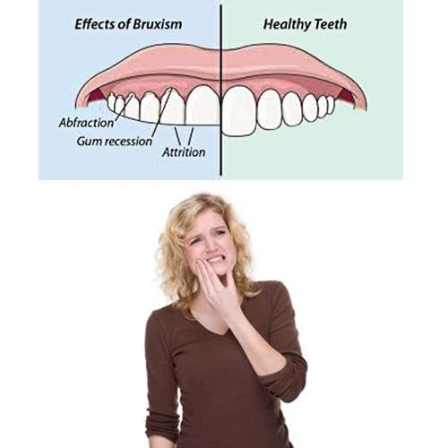 What are the signs and symptoms of teeth grinding?