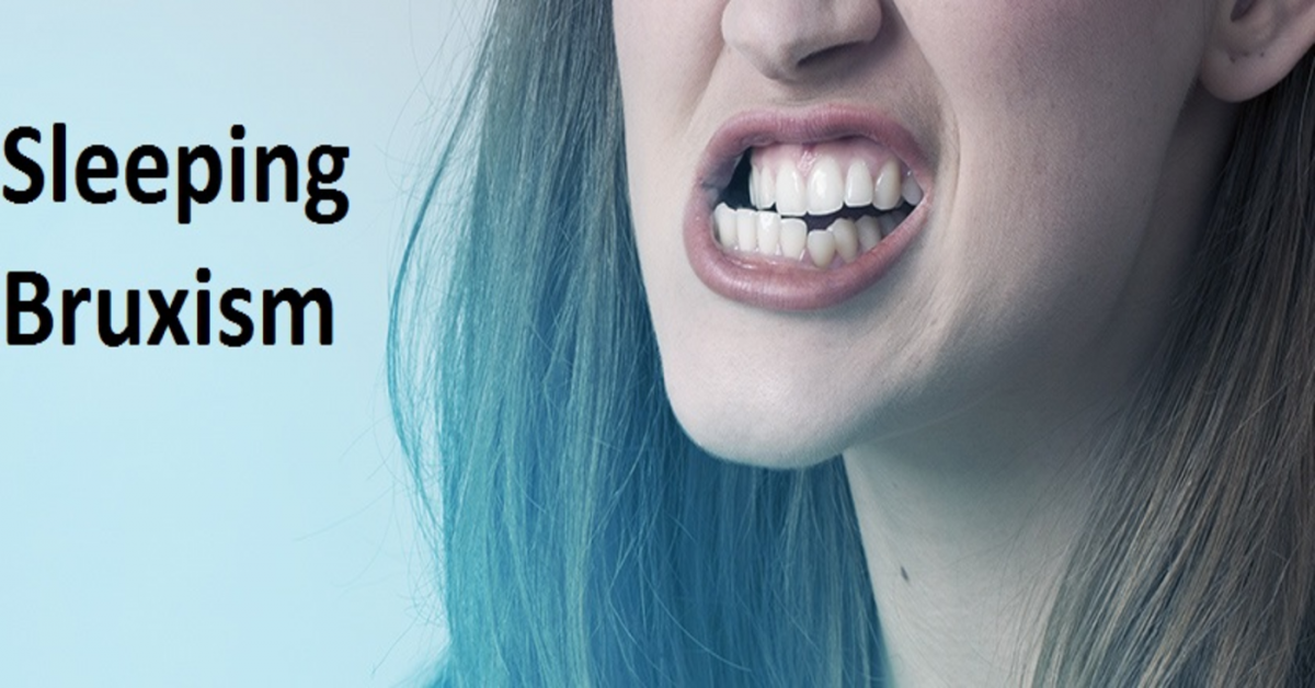 The link between teeth grinding and sleep disorders and a teeth grinding mouth guard solution