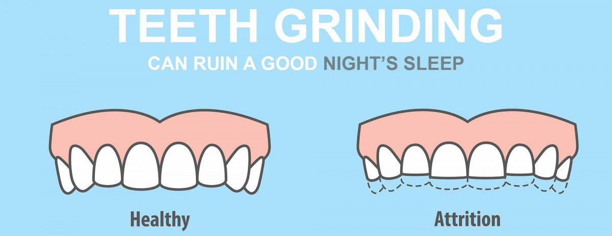Antidepressants and Teeth Grinding - Protect Teeth  From Teeth Grinding / Bruxism With Custom Teeth Mouth Guards