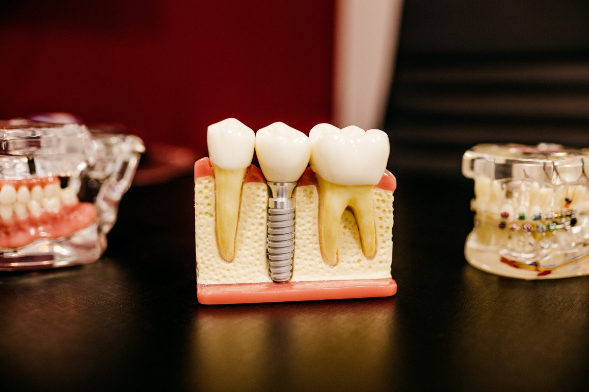 Wearing a Mouth Guard with Dental Implants