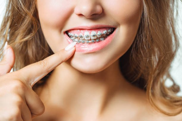 Can I Wear a Night Guard with Braces?