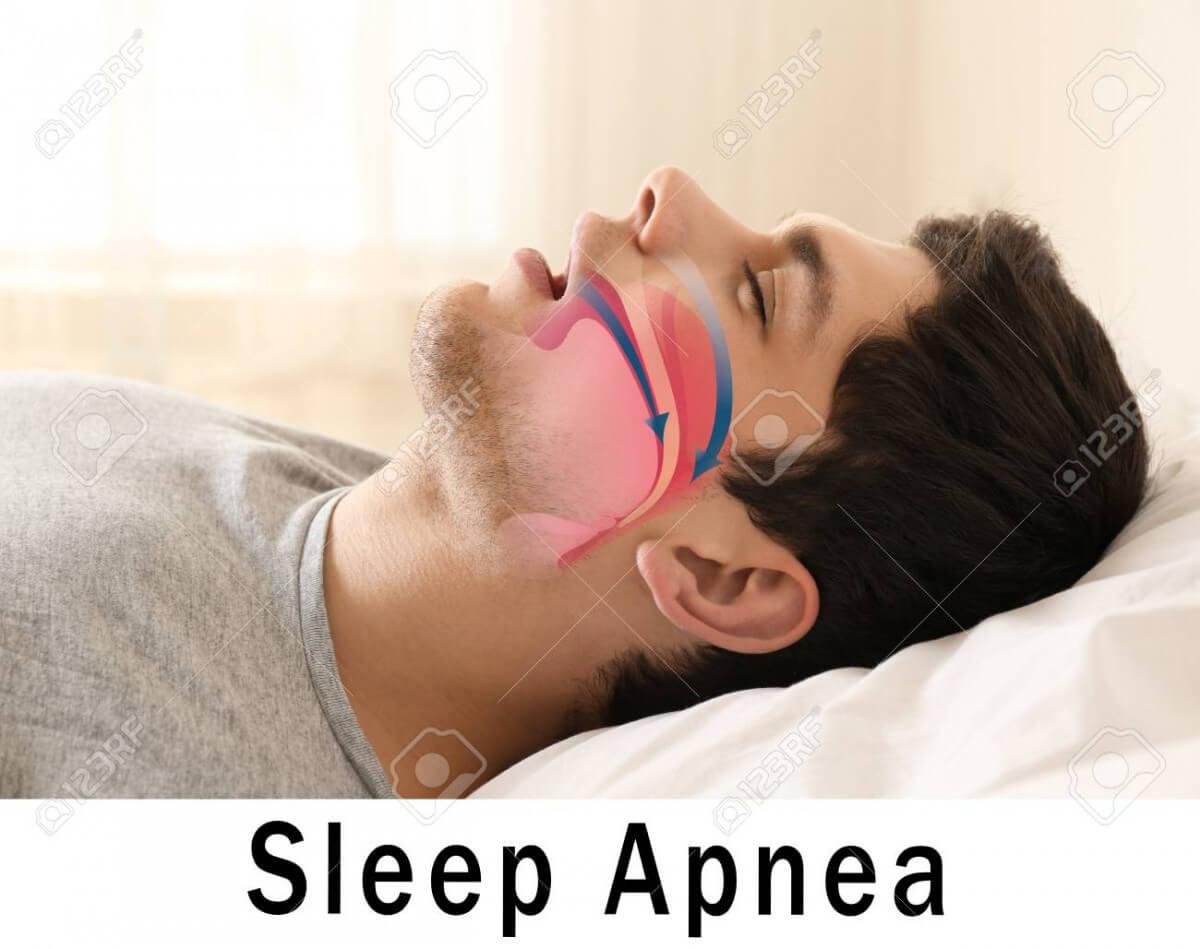Can A Night Guard Help With Sleep Apnea?
