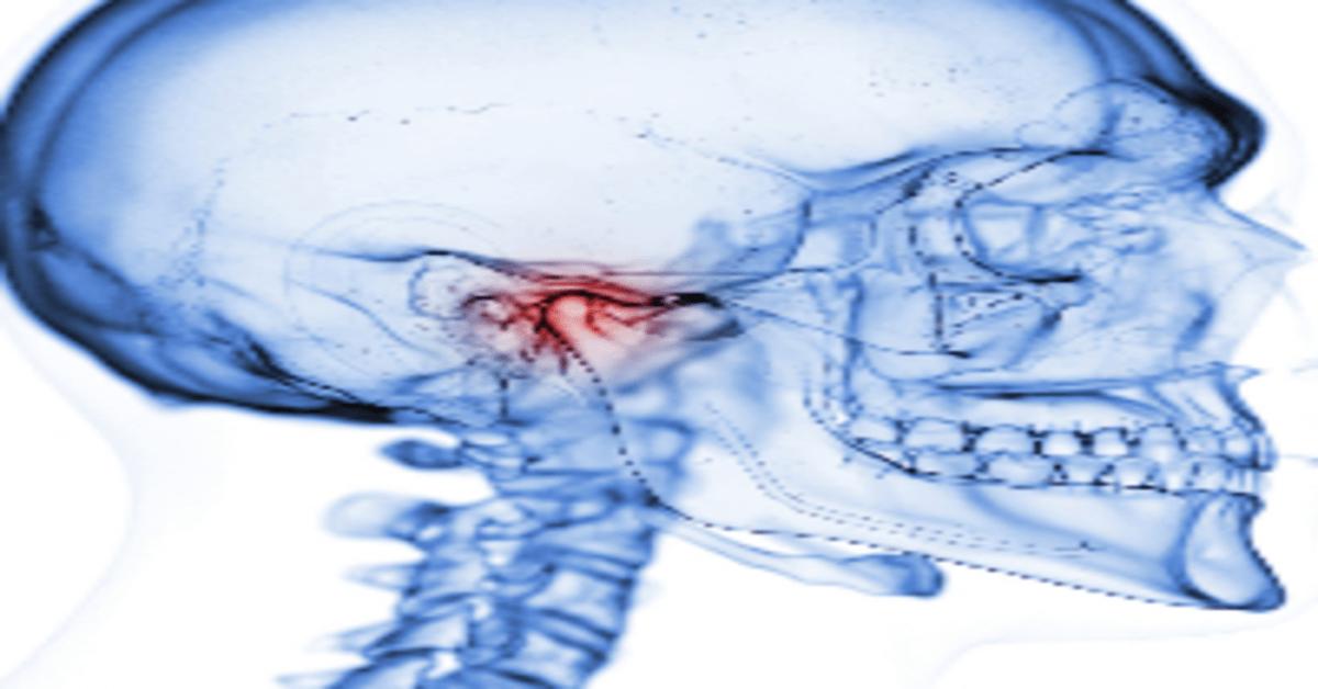 Treatment Options for  Temporomandibular Joint Disorders (TMD)