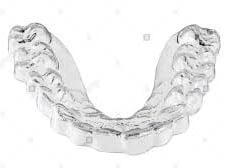 teeth grinding guard with braces
