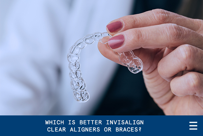 Which is Better Invisalign Clear Aligners or Braces?